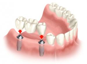 multiple_implants1