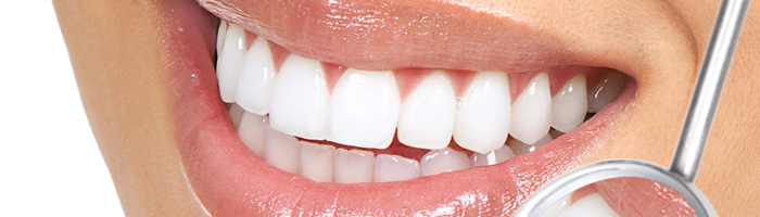 Get a Picture Perfect Smile with Teeth Whitening